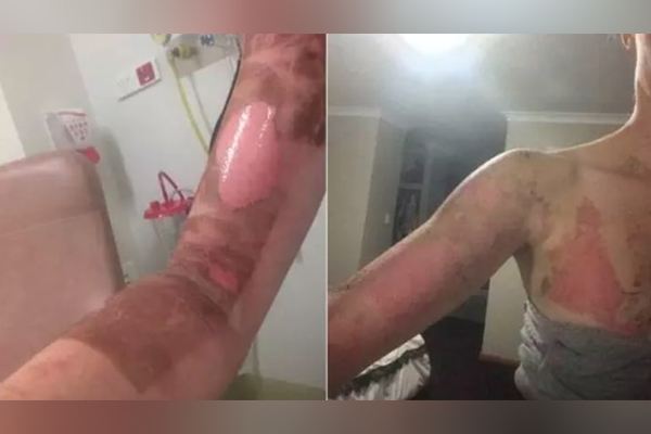 Article image for Thermomix fined $4.6 million after reports of severe burns