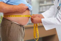 Should weight loss surgery be taxpayer funded?