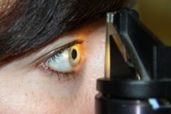 All about Eyes with Dr Allan Ared