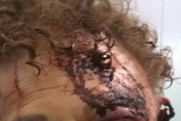 Article image for GRAPHIC WARNING | Grandmother's horrific injuries after being bashed by teenager