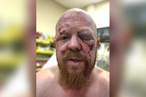 Article image for Paramedic bashed during charity bike ride