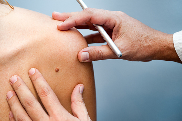 Article image for 3D skin scans hold hope of early melanoma detection